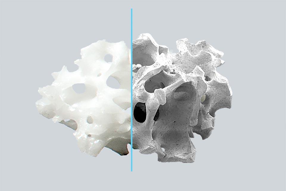瑞士品牌 Straumann 德國製造 botiss cerabone 天然再生骨粉
